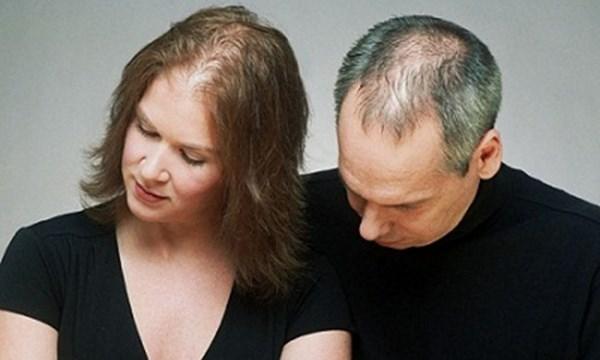 thuốc mọc tóc maxxhair có trị được hói hay không